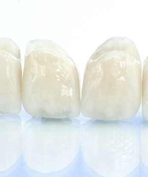 all-ceramic dental bridge on blue background