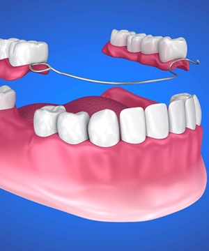 model of partial denture replacing missing teeth