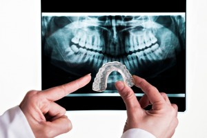Tooth grinding, or bruxism, causes dental fracture, facial pain and more. Consult dentist in Virginia Beach, Dr. Sarah Esparza, for a simple solution.