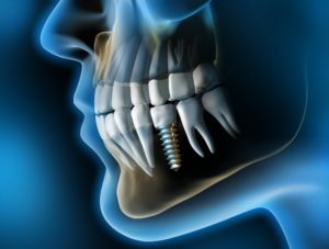 dental implant x-ray